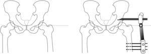 Surgical procedure of articulated arthrodiastasis. Firstly the centre of rotation of the femoral head is located by fluoroscopy and a Kirschner needle is inserted to serve as a reference. We then position 3 supraacetabular screws transversal to the longest axis of the femur, and 3 diaphyseal screws. The location of the external fixator hinge over the centre of rotation is especially important, so that we make this coincide with the guide needle. Before fixing the assembly, we perform a 15–20∘ abduction of the limb which allows the patient to sit.