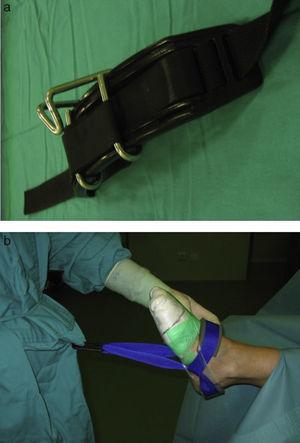 The harness is placed by the surgeon around his waist under the gown (a). Then the surgeon puts on the gown and anchors the sterile Guhl strap to the harness (b). This enables us to apply traction to the ankle joint on demand.