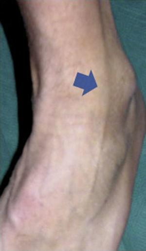 We identify the intermediate dorsal cutaneous branch of the superficial peroneal nerve using the fourth toe flexion sign.