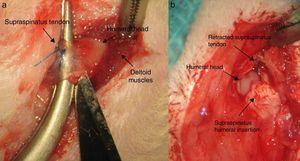 Creation of the tendon injury: (a) tendon marked with Prolene® and proximal section to its insertion in the troquiter; (b) retraction of the tendon in the chronic injury.