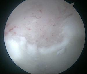 Intraoperative image of the right hip from the anterolateral portal. Bleeding through the microfractures after curbing the flow of intraarticular fluid.
