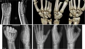 Patient A: (a) initial X-ray images showing the fracture and increased scapholunate space; (b) computed tomography image showing the scaphoid–trapezium coalition; (c) comparative X-ray images of the right wrist; (d) final X-ray images of the patient.