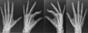 Patient B: posteroanterior and oblique X-ray images of both hands of the mother of patient A, showing bilateral carpal scaphoid–trapezium coalition in different degrees.