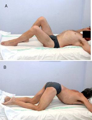 (A) 49-Year old patient with an ASIA B spinal cord injury following a traffic accident 8 years ago. Place in supine position, he presents ankylosis secondary to periarticular ossification (PHO) of both hips. The right hip displays greater involvement, with 85° flexion that limits his sitting in a wheelchair. (B) In the prone position, we can see ankylosis in both hips.