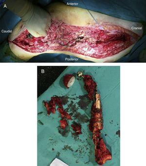(A) Surgical bed after resection of the implant and remains of femur. (B) Specimen after the resection.