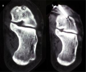 Case 4. Coronal CT (a) of the hindfoot showing the nidus in the neck of talus, in a subperiosteal location, and CT-guided thermoablation (b).
