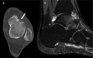 Case 5: axial slice of CT (a) Sagittal MRI T-2 weighted sequence (b). The CT shows the nidus with central calcification (arrow), and the MRI shows the nidus, oedema of the talus and tibiotarsal synovitis.