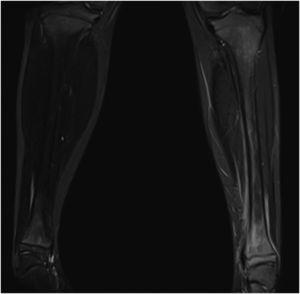 Extensive involvement of the left tibia observed after bone puncture in MRI. The total bone involvement is appreciated with the main lesion at distal metaphysic level and oedema of adjacent soft tissues.