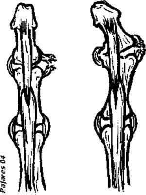 Distension of the ulnar collateral ligament of the DIP joint, untreated after repetitive trauma, developing lateral instability. The tractor effect of the insertion of the deep flexor tendon of the fingers in the distal phalange acts as a bowstring developing the deformity.