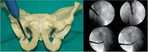 Second osteotomy; infra-acetabular fossa, 1cm ventral to the posterior ischial cortex Supervised by antero-posterior and Lequesne's X-rays.