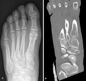 Initial X-ray (A) and CT image (B) confirming the diagnosis of suspected TMC injury. The fleck sign can be seen with the longitudinal CT cut (B).