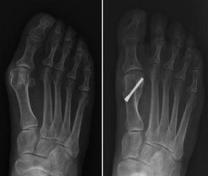Follow-up at one year following Bösch osteotomy.