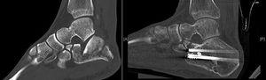 A-B) Pre and postoperative CT of Sanders type iii fracture treated with indirect reduction and cannulated screws, good recovery of articular congruence.