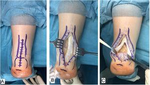 Approach. A) Dorsal approach over the Achilles' tendon. B) Exposure of the tendon and enthesis in the calcaneus. C) Partial disinsertion in inverted T.