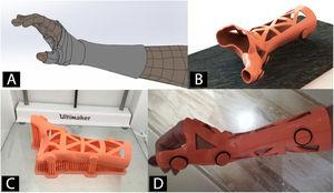 Example of a wrist orthosis made using 3D printing 3D. A) Virtual rendering after Surface scanning. B) CAD model of customised orthosis. C) 3D printing using FDM technology on PLA material. D) Correct application of the orthosis.