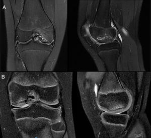 A) Magnetic resonance in coronal and saggital slices where an unstable lesion was observed in the medial femoral condyle in keeping with the criteria of Kijowski et al.21: a high T2 signal intensity rim which had the same signal intensity as the adjacent joint fluid; a secondary outer rim of low T2 signal intensity; multiple breaks in the subchondral bone plate, and the existence of multiple cysts or only one cyst above 5mm in diameter. In addition to this, in this case, disruption of the joint cartilage was observed. B) Magnetic resonance in coronal and sagggital slices where we observed a stable lesion with osseous subchondral oedema in the medial femoral condyle but with none of the previously described features.