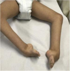 13-year-old patient with Cornelia de Lange syndrome and bilateral clubfeet.