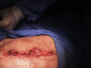 Plastia abdominal con la técnica de Monfort. Aproximación de la piel.