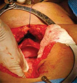 Exploración quirúrgica abdominal, donde se evidencia la ausencia de estructuras Müllerianas y de vestigios testiculares.