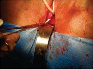 Se aboca el cabo proximal al neocanal vaginal, se anastomosa y se cierra el cabo distal en 2 planos.