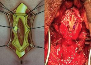 Colocación del injerto de mucosa oral dorsal inlay.