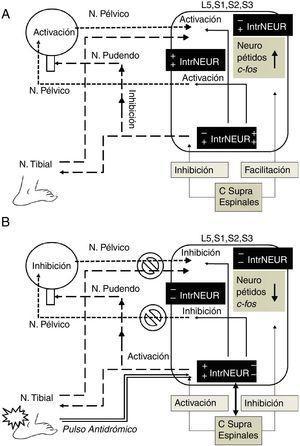 Mecanismo de acción hipotético de la neuromodulación por electroestimulación del nervio tibial posterior. A. Activación por pulso ortodrómico. En la hiperactividad del detrusor el impulso aferente vesical y la activación del núcleo parasimpático sacro (N. pélvico) son facilitadas a nivel espinal por la elevación de neuropéptidos (sustancia P, neurocinina A, etc.) y de c-fos, así como por el efecto de los centros supraespinales (hipotálamo, tallo cerebral, etc.) a través de interneuronas semejantes a células de Renshaw (signos+en IntrNEUR), que también inhiben el núcleo somático de Onuf (N. pudendo) contribuyendo a la presencia de incontinencia de urgencia (signos−en IntrNEUR). B. Inhibición por pulso antidrómico de la electroestimulación del nervio tibial posterior. El pulso antidrómico bloquea la trasmisión aferente vesical e inhibe el pulso eferente del núcleo parasimpático sacro (signos−en IntrNEUR), activando a su vez el núcleo somático de Onuf hacia N. pudendo por medio de interneuronas (signos+en IntrNEUR), provocando disminución de neuropéptidos y c-fos. El pulso antidrómico a través del N. tibial, afecta también por vía de interneuronas, los centros supraespinales (flecha bidireccional), que a su vez inhiben al núcleo parasimpático sacro (signos−en IntrNEUR) hacia N. pélvico, provocando inhibición recurrente, posiblemente por neuroplasticidad espinal y supraespinal. C Supra Espinales: centros supraespinales; IntrNEUR: interneuronas; L5, S1, S2, S3: segmentos medulares involucrados en la neuromodulación..