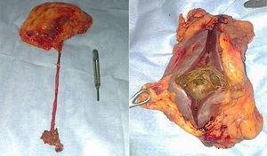 Pieza quirúrgica completa (riñón, uréter y rodete vesical), sección de la pieza quirúrgica la cual muestra tumoración infiltrante de parénquima, la cual macroscópicamente no se extiende a la grasa perirrenal.