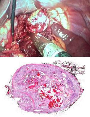 En la imagen superior se aprecia la enucleación completa y sección del pedículo con carga vascular. En la imagen inferior, fotomicrografía de la lesión (con tinción hematoxilina-eosina ×4), en la que se observan abundantes lagunas vasculares repletas de hematíes y áreas de osificación.