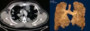 TC de tórax, pieza macroscópica de pulmón.