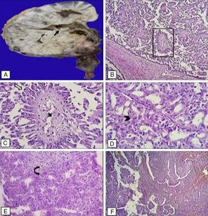 A. Imagen macroscópica de tumor renal en polo inferior, con formación de papilas (flecha negra). B. En los cortes histológicos se identifica tumor con espacios quísticos y papilas verdaderas (recuadro). C. Muestra tallo fibromuscular (tache), con estriación de las células que la revisten (flecha blanca). D. Células epiteliales malignas con núcleo redondo, nucléolo evidente y citoplasma moderado eosinófilo (punta de flecha). E. Tumor que infiltra la glándula suprarrenal (flecha curva). F. Trombo en vena cava constituido por células tumorales.