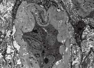 – Electron microscopy showing an atrophic tubule with thick basement membranes containing abundant electron-dense deposits (× 5,000).