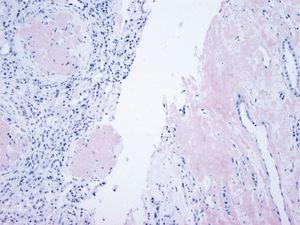 Renal biopsy (mother). Massive glomerular deposit in cortex (left) and interstitial deposit in bone marrow (right) (Congo red ×100).