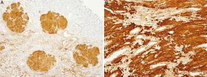 (A) Renal biopsy (mother). Immunohistochemistry for positive Apo AI in glomerular deposits. (B) Renal biopsy (mother). Immunohistochemistry for positive Apo AI in renal medulla interstitial deposits.