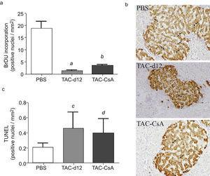 Proliferation (a) and apoptosis (b) of beta cells. The mean is represented±SD. (a) a: TAC-d12 vs PBS p=0.009&#59; b: TAC-CsA vs PBS p=0.001 and vs TAC-d12 p=0.003. (b) c: TAC-d12 v PBS p=0.172. d: TAC-CsA vs PBS p=0.311 and vs TAC-d12 p=0.824.