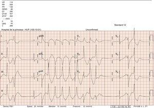 Polymorphic ventricular tachycardia. Increased QT.