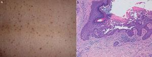 (a) Aspect of the skin lesions: non-confluent brownish keratotic papules. (b) Areas of focal acantholysis with dyskeratosis (H&E, 200×).