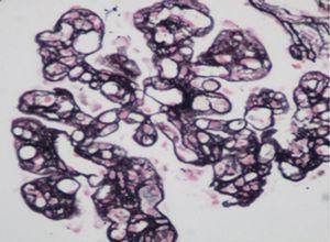 Renal biopsy (methenamine silver stain) 200×.