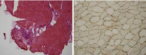 (a) Haematoxylin–eosin study of skeletal muscle tissue with mononuclear inflammatory infiltrate with preferential perimysial localisation. (b) Immunohistochemical study of muscle tissue for MHC 1 (HLA) showing its overexpression in the membrane of muscle fibres.