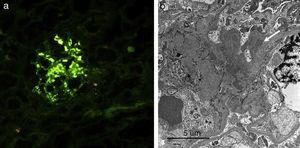 (a) Immunofluorescence study of renal tissue showing mesangial deposits of IgA. (b) Electron microscopy showing electron-dense deposits in the mesangium (white arrow).