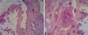 Histological sections of the lesions in the right buttock and thigh, in a 23-year-old patient. (a) Areas with a cystic appearance with calcium deposits and epithelioid cells. (b) Presence of multinucleate giant cells.