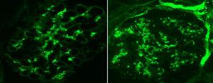 Immunofluorescence in conjugated antibodies showing diffuse granular mesangial uptake for C3 and IgA.