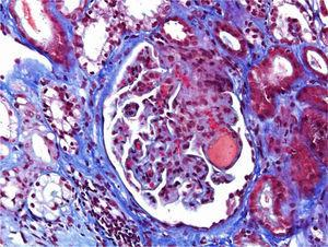 Acute TMA showing thrombosis at glomerular capillaries and mesangiolysis (Masson's trichrome stain).