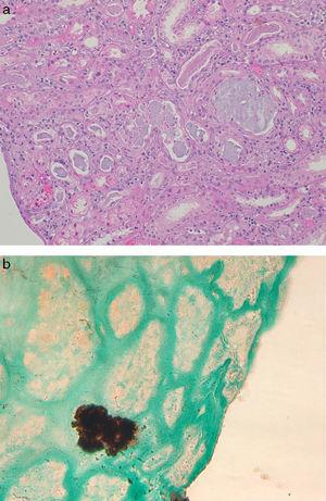 Renal biopsy findings in chronic phosphate nephropathy. (a) Case of chronic phosphate nephropathy with abundant intraluminal and intracellular calcifications in distal tubules accompanied by tubular atrophy and fibrosis (hematoxylin and eosin) and (b) a positive histochemical reaction with the von Kossa stain confirms that the tubular concretions are composed of calcium phosphate.