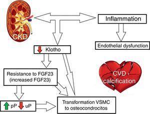 Diagram of BMD-CKD abnormalities and involvement in vascular calcification. CVD: cardiovascular disease&#59; uP: urine phosphorus&#59; pP: plasma phosphorus.