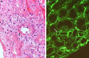 (A) Acute humoral rejection. Transmural arteritis (fibrinoid necrosis of the vascular wall) (H&E). (B) C4d deposits in the peritubular capillaries (Immunofluorescence).