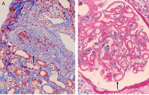 (A) Transplant vasculopathy. Myointimal proliferation with vascular occlusion (Masson trichrome). (B) Transplant glomerulopathy. Disseminated duplication of the glomerular basement membrane (PAS).