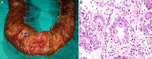 (A) Intra-operative image of the resected specimen. An opening has been made in the resected loop of small intestine and the ulceration that is the source of the bleeding may be observed. B) Histology image with H&E 400×. Cytomegalic inclusions (arrows) in the interior of the mucus-depleted intestinal cells.
