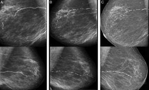 Right (above) and left (below) mammograms in 2011 (A), in 2013 (B) and in 2015 (C).
