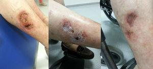 Right leg: left: before treatment; centre: after intravenous treatment; right: after topical treatment.