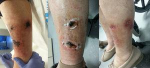 Left leg: left: before treatment; centre: after intravenous treatment; right: after topical treatment.